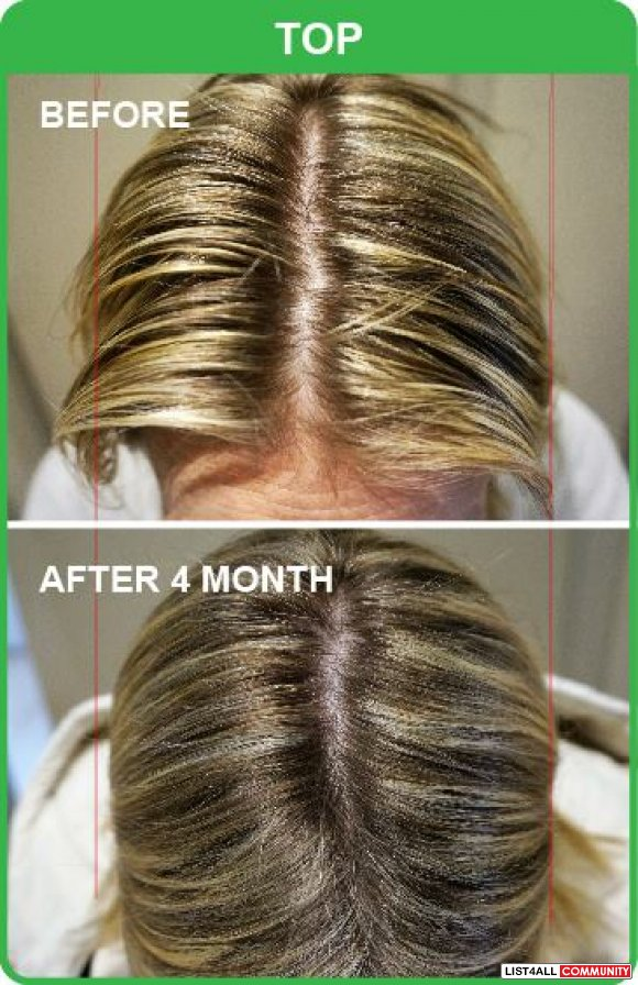 Most Preferred Hair Loss Treatment Provider in Gold Coast