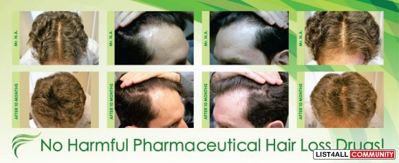 Looking for Hair Loss Treatment in Adelaide?